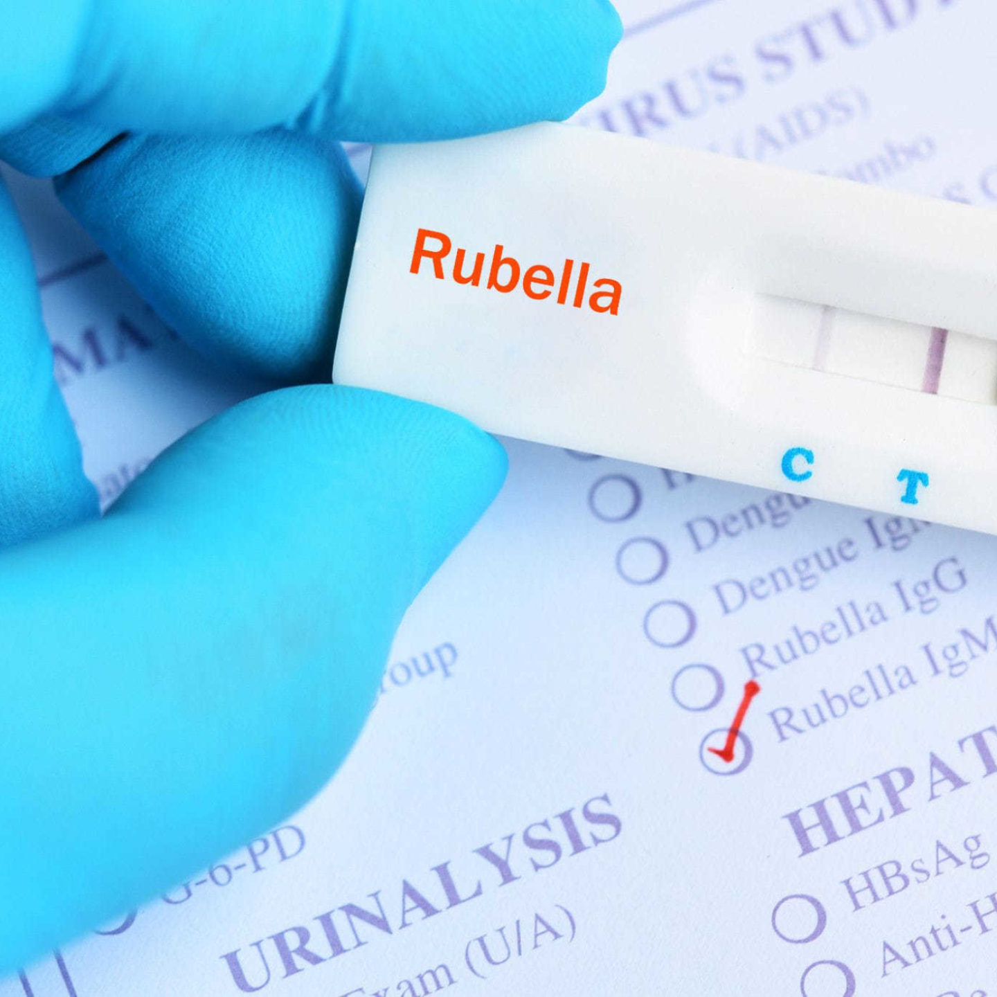 Medical device test for rubella